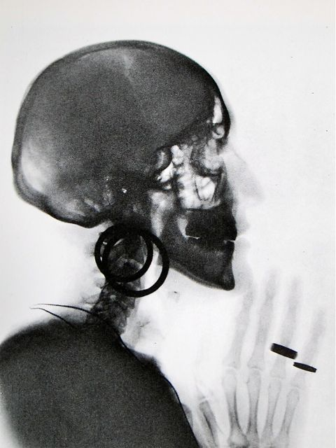 Meret Oppenheim X-Ray of the Skull of M.O. 1964